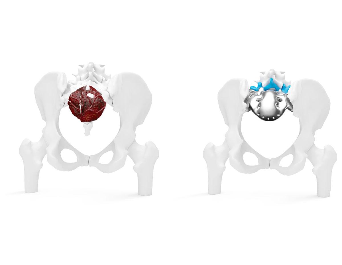 Reconstructive Implants Made of Titanium (GTI)