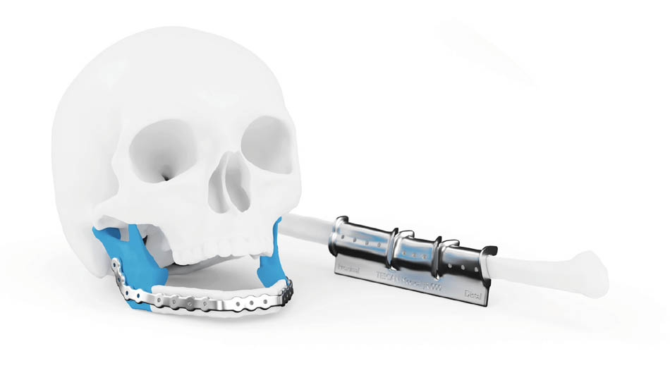 Jaw Reconstruction
